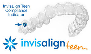 about-invisalign-teen-the-yeny-video-porno